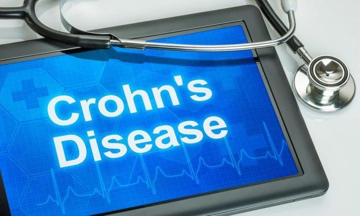 Crohns картинка.JPG
