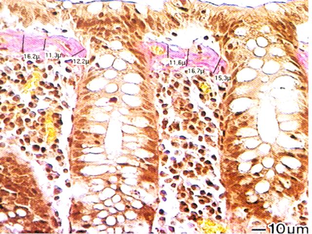 1.Kollagenoviy_colit_histology